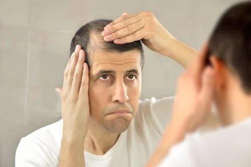 łysienie u mężczyzn to spory problem