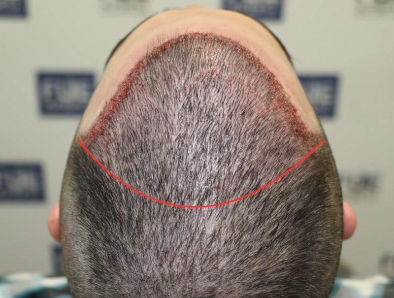 przeszczep włosów sposobem na łysinę